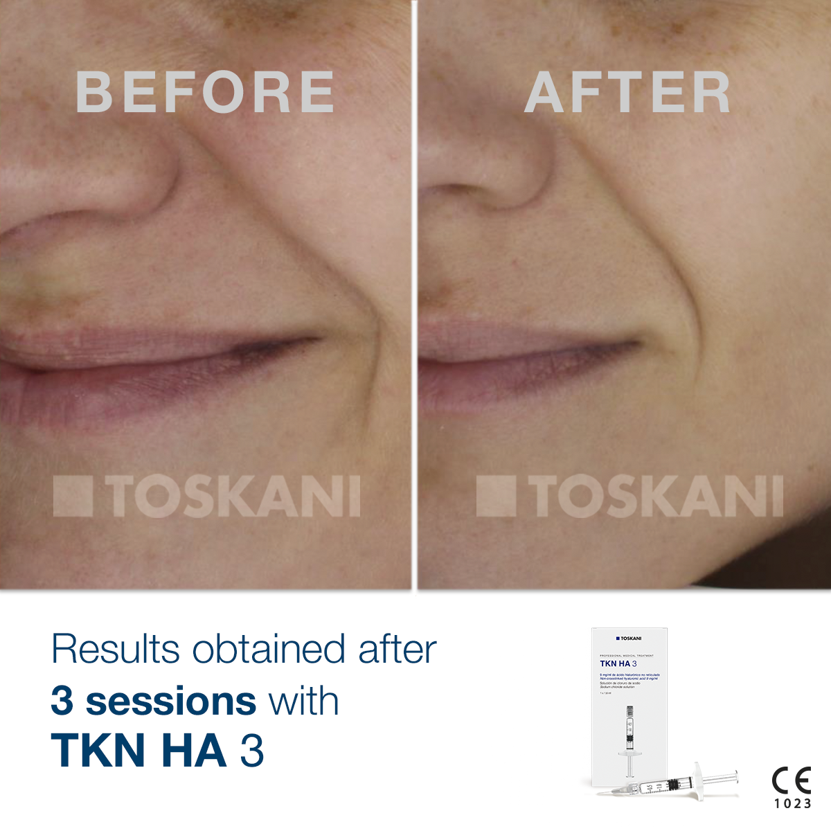 TKN_HA-3_before-after_2