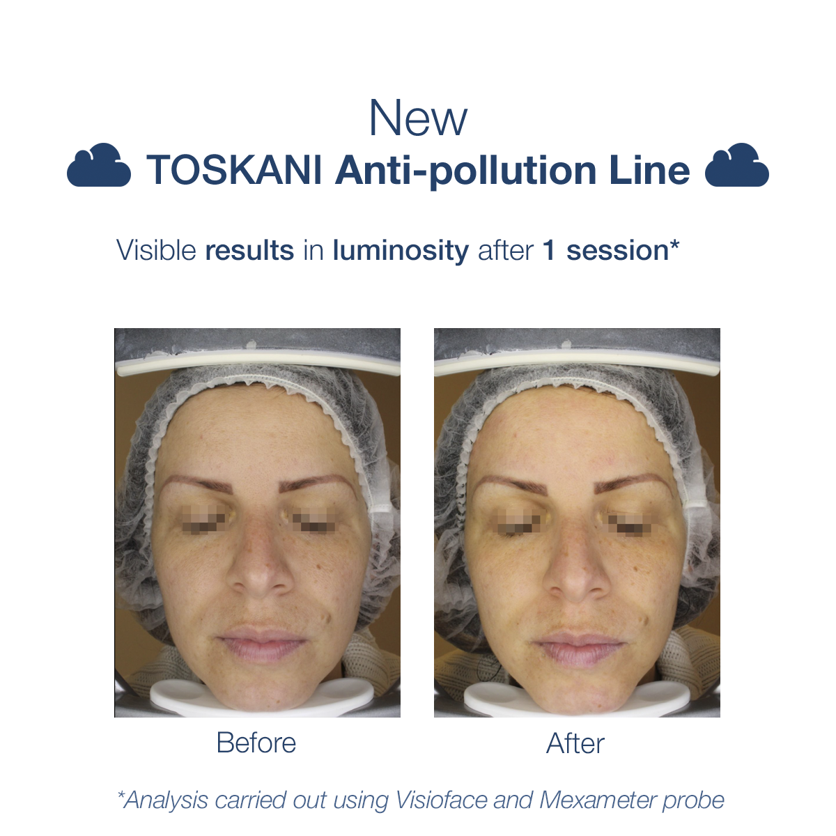 TKN_antipollutionline_b_a_1