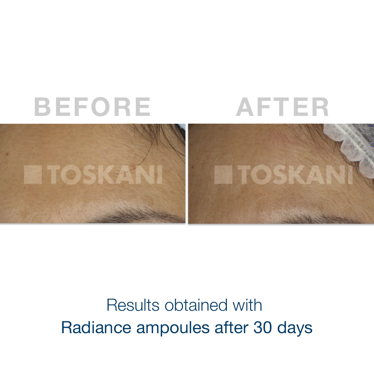 TKN_radiance-ampoules_before-after
