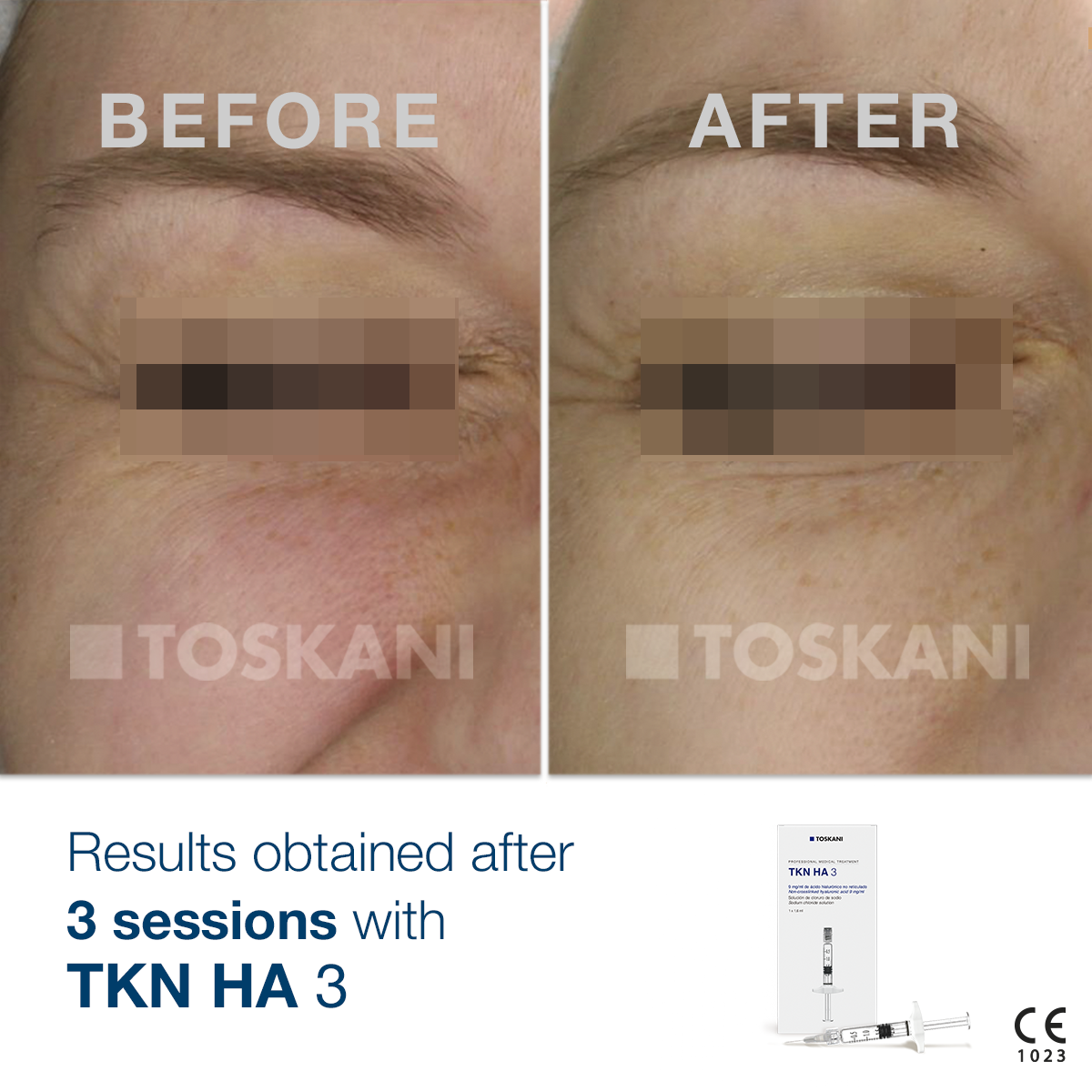TKN_HA-3_before-after_3
