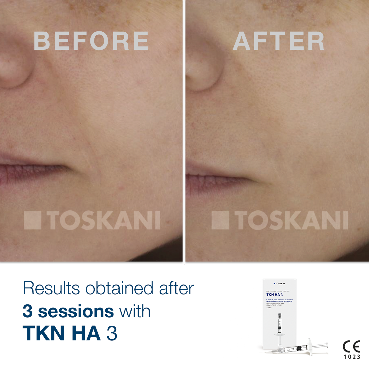 TKN_HA3_before-after_1