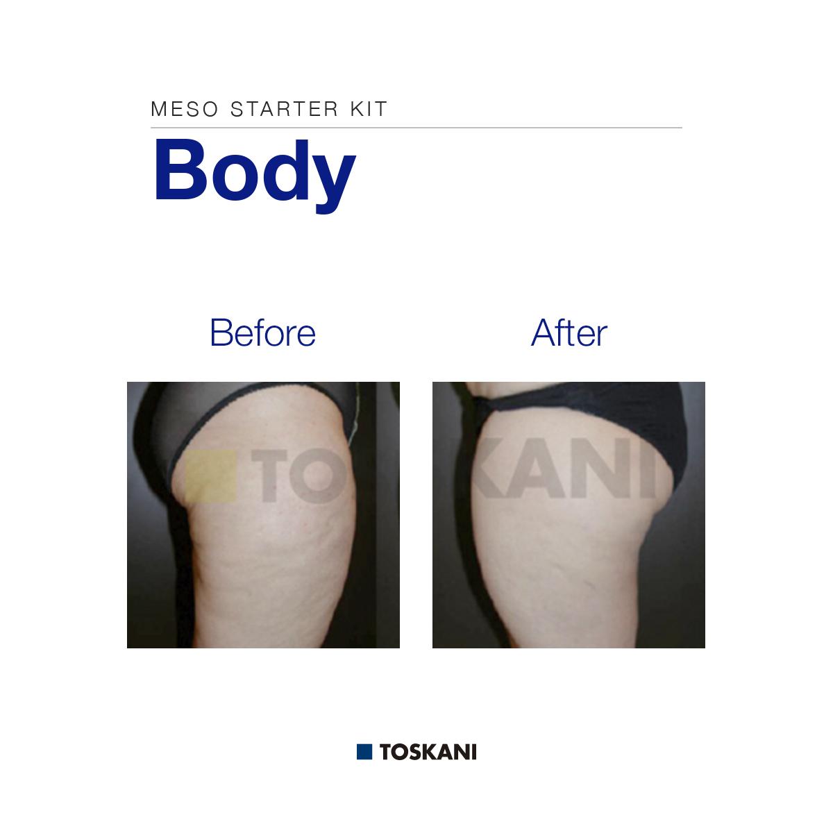 TKN_Body-Meso_Starter