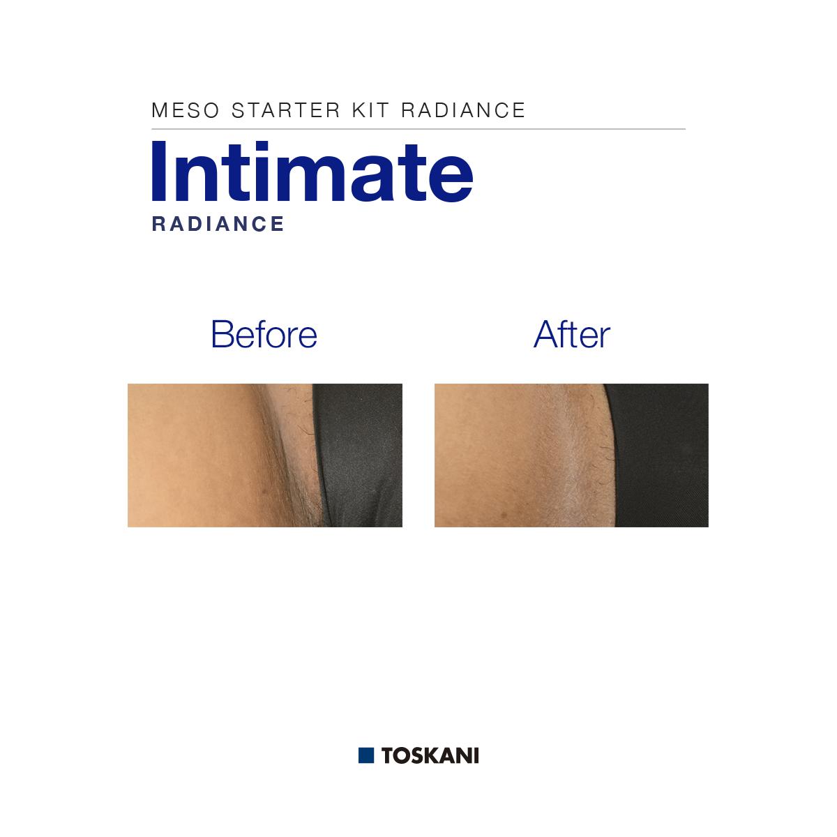 TKN_Intimate_B_A
