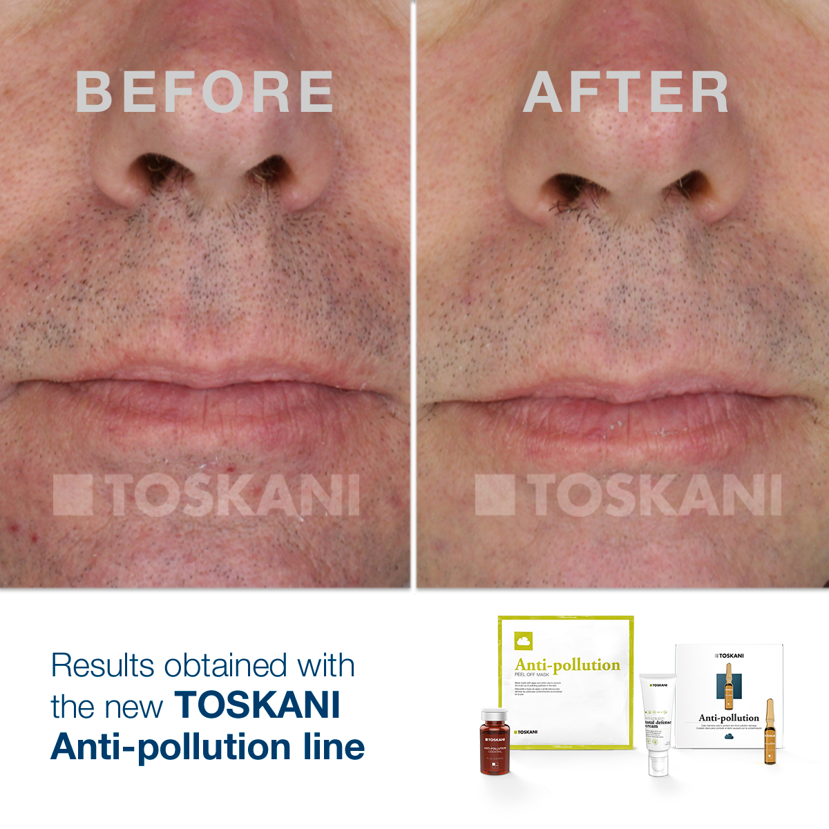 TKN_antipollution_before_after2