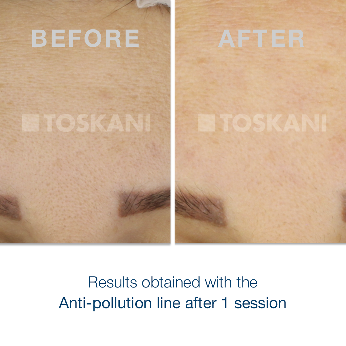 TKN_antipollution_before_after