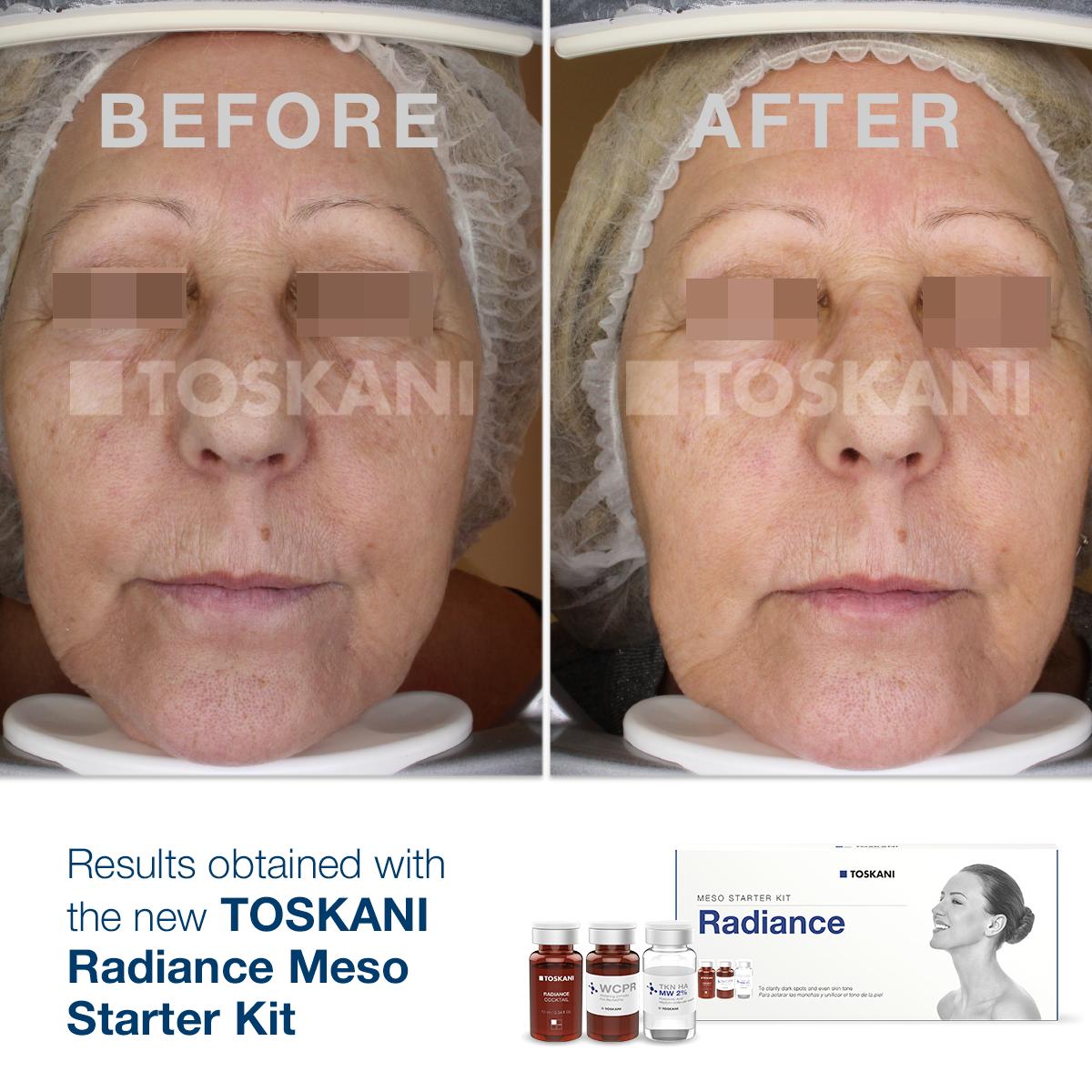 TKN_StarterKit_Radiance4_before-after