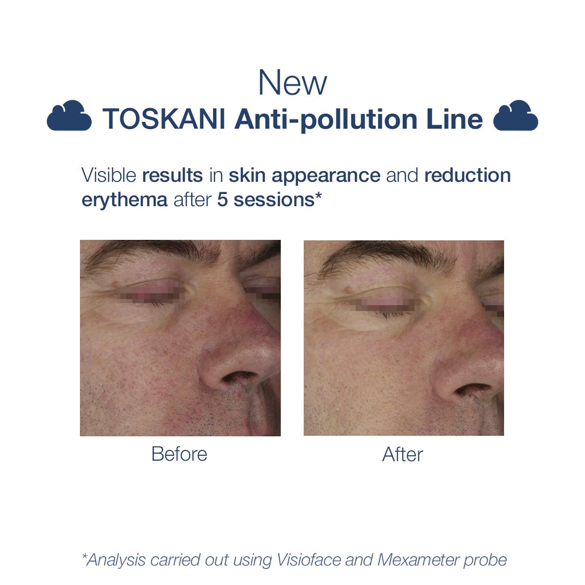 TKN_antipollutionline_b-a_3