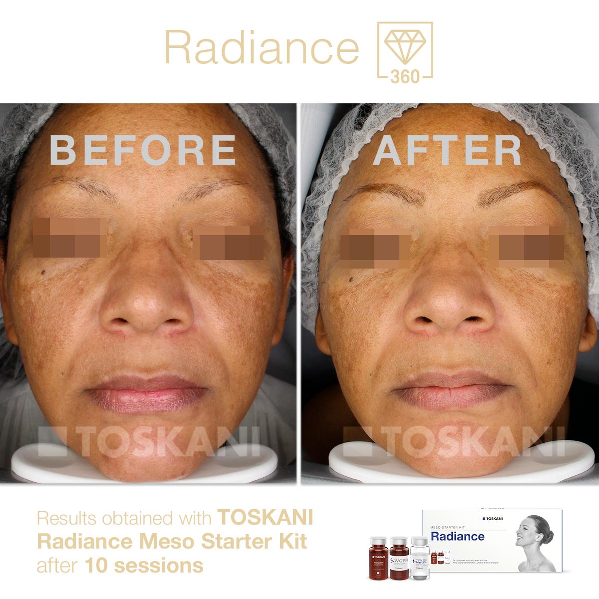 TKN_before-after_RadianceMesoStarterKit_10sessions